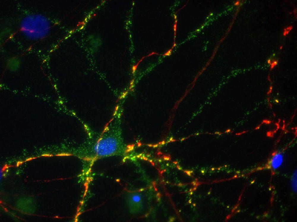 Les effets tardifs sur notre cerveau d'un traumatisme - Sciences et avenir